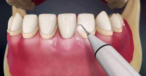 Dental Scaling 300x157